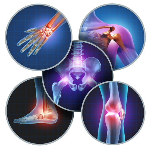 Arthritic Pain & Inflammation